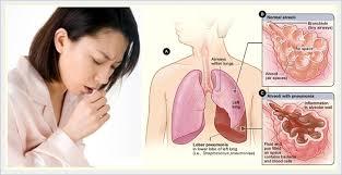 penyakit-tbc
